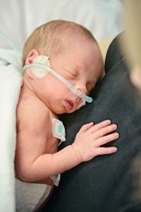 Preemie on oxygen.jpg resized