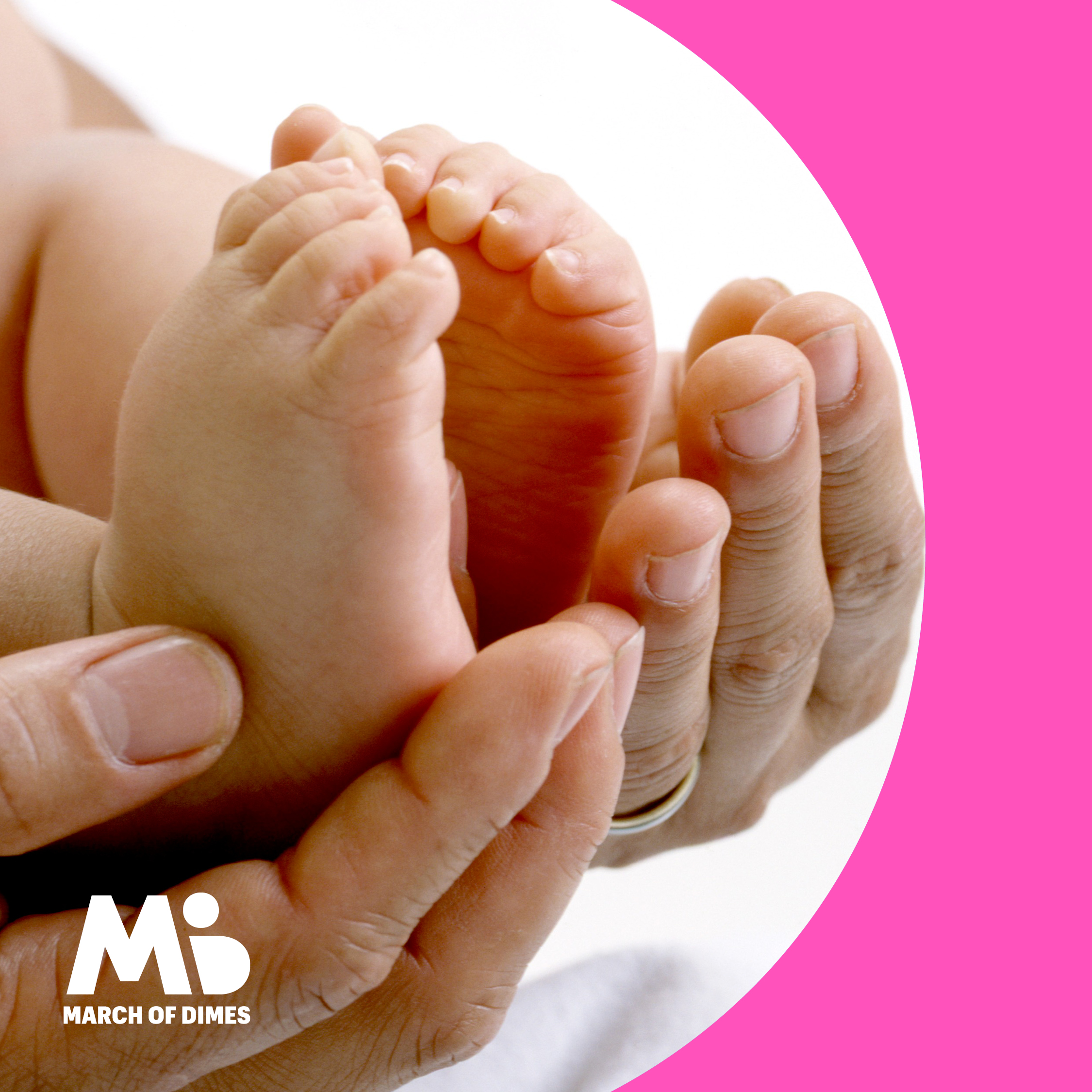 Preventing birth defects caused by isotretinoin